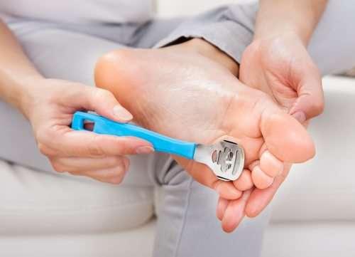 Top 5 Callus Shaving tips