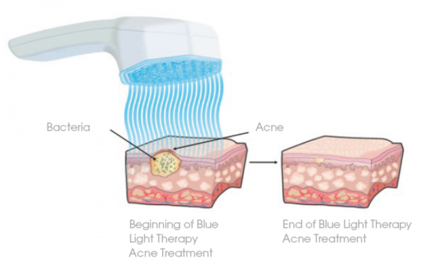 How does blue light therapy work